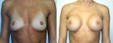 Breast Augmentation Photos - Bruce K. Smith M.D.