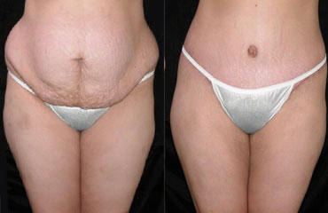 tummy tuck patient 1a