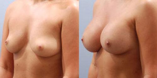 breastaug_10b