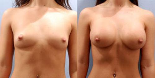 breastaug_11a