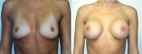 breastaug_1a