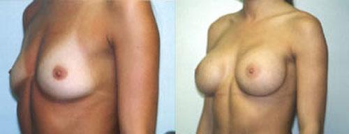 breastaug_1b