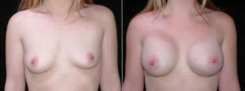 breastaug_2a