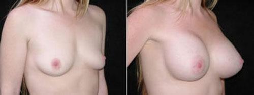 breastaug_2b