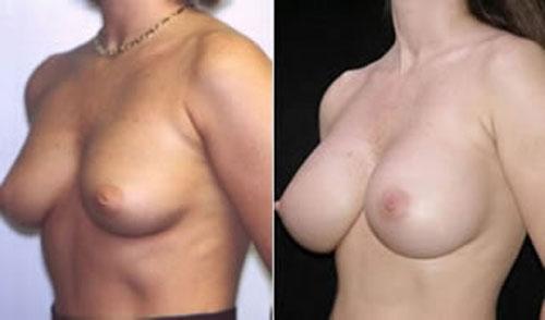 breastaug_3a