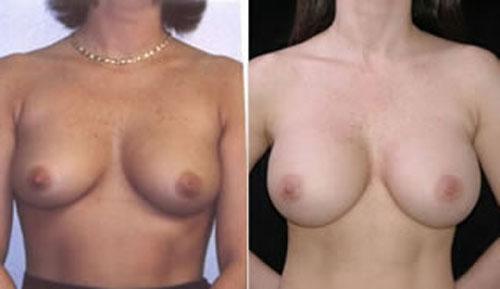breastaug_3b