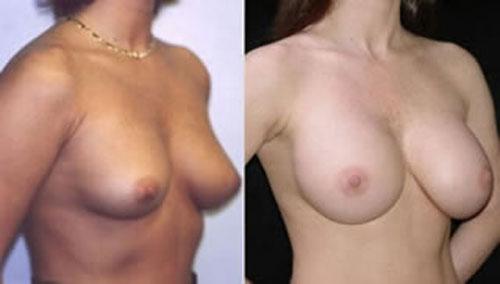 breastaug_3c