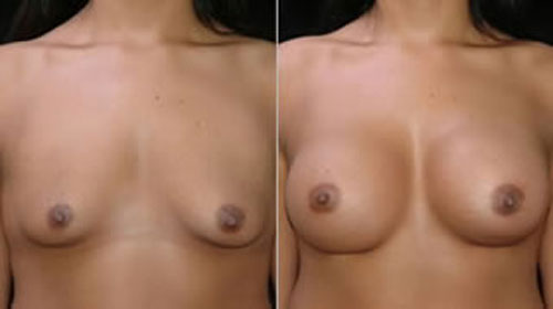 breastaug_4a