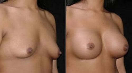 breastaug_4b