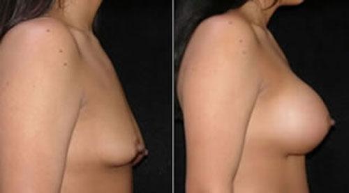 breastaug_4c