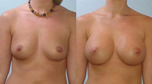 breastaug_5a
