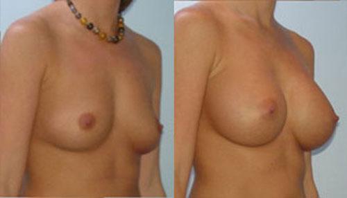 breastaug_5b