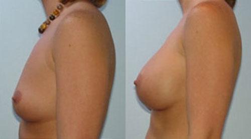 breastaug_5c