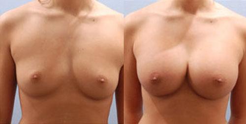 breastaug_6a