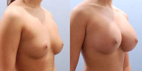 breastaug_6b