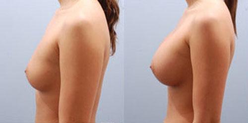 breastaug_6c