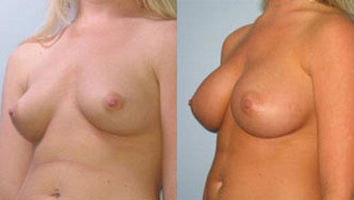 breastaug_7b