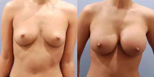 breastaug_8a