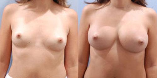 breastaug_9a
