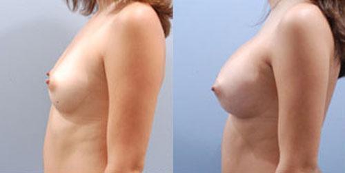 breastaug_9b