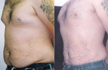 liposuction_1a