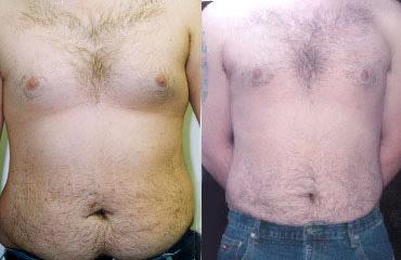 liposuction_1b