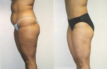liposuction_2a