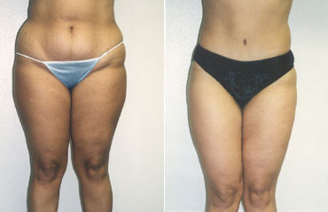 liposuction_2b