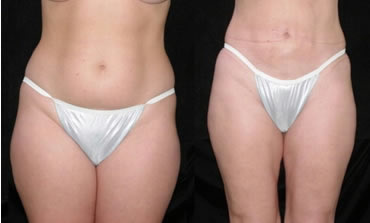 liposuction_3a