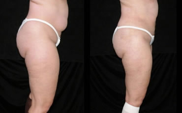 liposuction_4a
