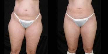 liposuction_4b
