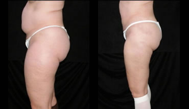 liposuction_4c