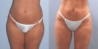 liposuction_5a