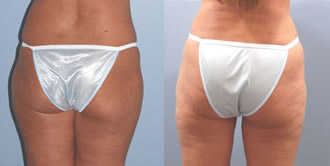 liposuction_5b