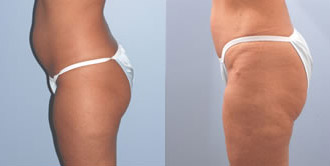 liposuction_5c