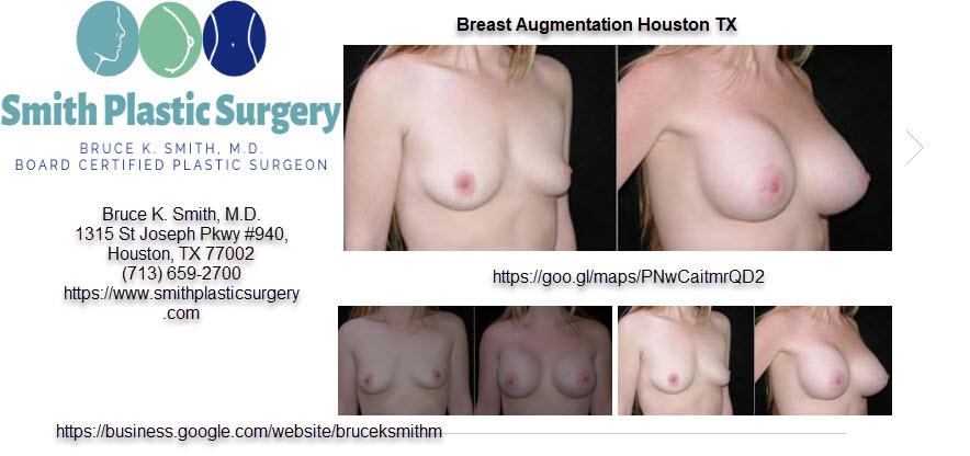 Breast Augmentation Houston TX