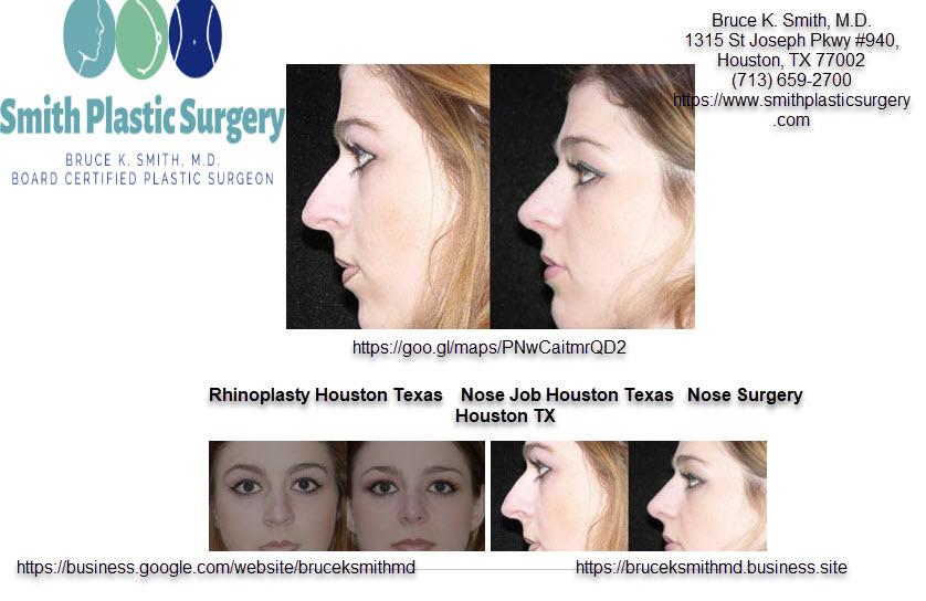 Rhinoplasty Houston Texas